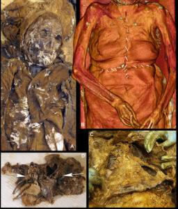 louise-autopsy